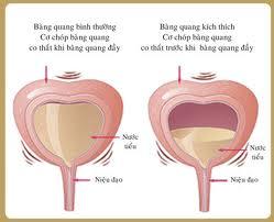 Triệu chứng của viêm bàng quang là gì